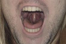 how to get rid of a swollen uvula